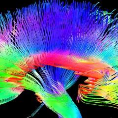 Cerebro y música: El efecto de la improvisación, la interpretación y los límites de la percepción